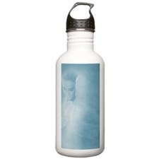 Breast self- examinati Water Bottle