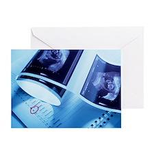 Foetus ultrasound Greeting Card