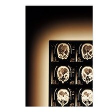 Radiograph of Brain Postcards (Package of 8)