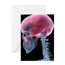 Headache, X-ray artwork Greeting Card