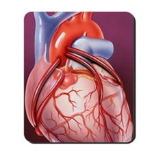 Heart bypass grafts Mousepad