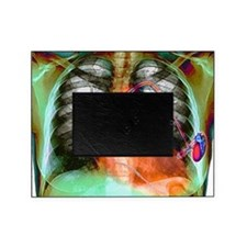 Heart pacemaker, X-ray Picture Frame