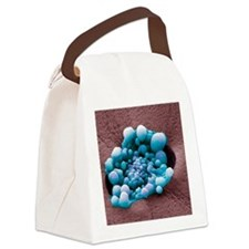 HeLa cells, SEM Canvas Lunch Bag