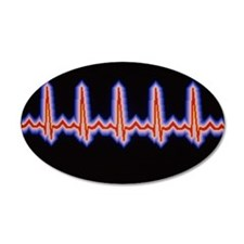 Heartbeat trace Wall Decal