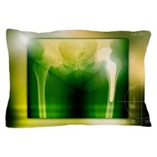 Hip replacement, X-ray Pillow Case