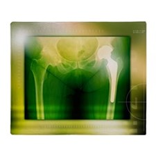 Hip replacement, X-ray Throw Blanket