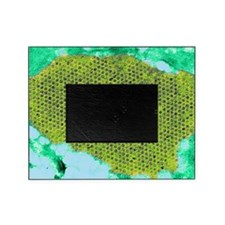 Human papilloma virus particles, TEM Picture Frame