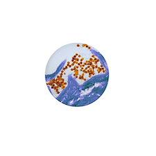 Human papilloma virus particles, TEM Mini Button