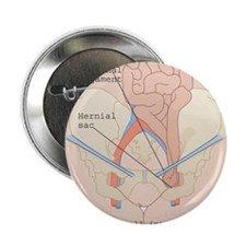 "Inguinal hernia, artwork 2.25"" Button"