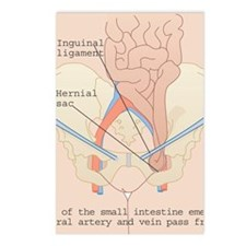Inguinal hernia, artwork Postcards (Package of 8)