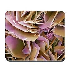 Kidney stone crystals, SEM Mousepad