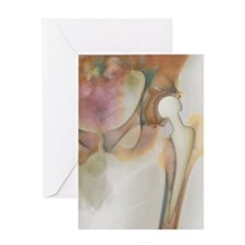Loosened hip replacement, X-ray Greeting Card