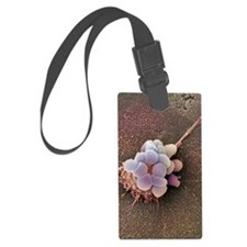 Ovarian cancer cell, SEM Luggage Tag