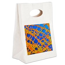 Osteoporotic bone Canvas Lunch Tote
