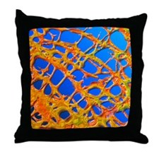 Osteoporotic bone Throw Pillow