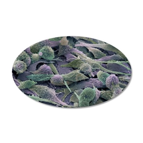 Ovarian cancer cells, SEM 35x21 Oval Wall Decal