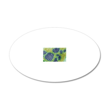 Papilloma virus particles, T 20x12 Oval Wall Decal