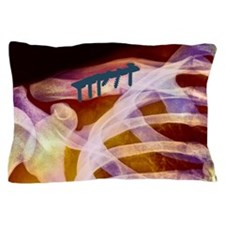 m3301544 Pillow Case