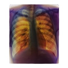 Pneumothorax Throw Blanket