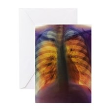 Pneumothorax Greeting Card