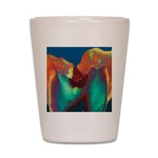 Polarised LM of a molar tooth showing d Shot Glass