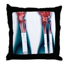 Pinned broken arm, X-ray (2 views) Throw Pillow