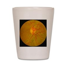 Retina damage in diabetes Shot Glass