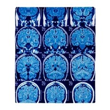 Brain scans, MRI scans Throw Blanket