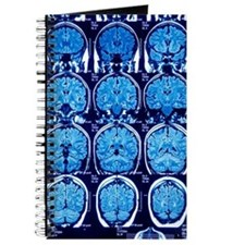 Brain scans, MRI scans Journal