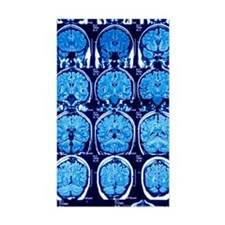 Brain scans, MRI scans Decal