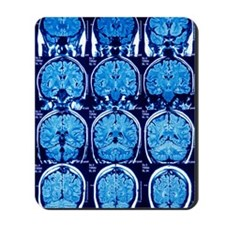 Brain scans, MRI scans Mousepad
