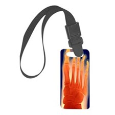 Child's foot, X-ray Luggage Tag