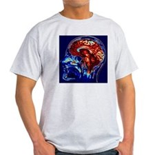 Coloured MRI scan of brain in sagitt T-Shirt