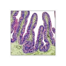 "Gall bladder surface, light Square Sticker 3"" x 3"""