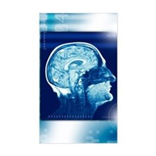 Healthy brain, MRI scan Decal