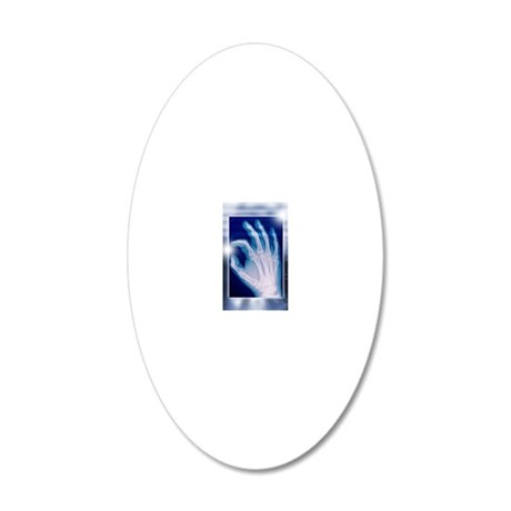 Healthy hand, X-ray 20x12 Oval Wall Decal