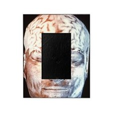 Human brain Picture Frame