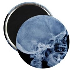 Normal skull, X-ray Magnet
