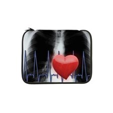"Red heart and EKG over chest X-r 13"" Laptop Sleeve"
