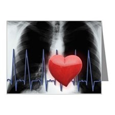 Red heart and EKG over chest Note Cards (Pk of 10)