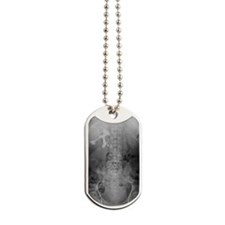Staghorn kidney stone, X-ray Dog Tags