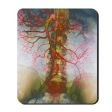 X-ray of arteries Mousepad