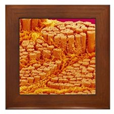 Smooth muscle, SEM Framed Tile