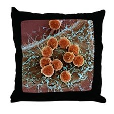 T lymphocytes and cancer cell, SEM Throw Pillow