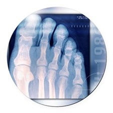 Toes, X-ray Round Car Magnet