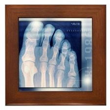 Toes, X-ray Framed Tile