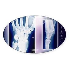 Wrist bones, X-ray Decal