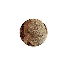 Ciliate protozoan, SEM Mini Button