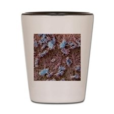 Dust mites, SEM Shot Glass