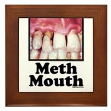 Meth Mouth Framed Tile